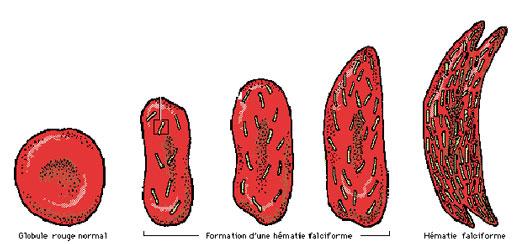 Définition-drépanocytose